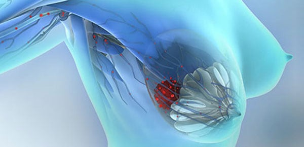 CTCs as prognostic markers for metastatic breast cancer